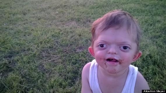 Enfantsyndrome