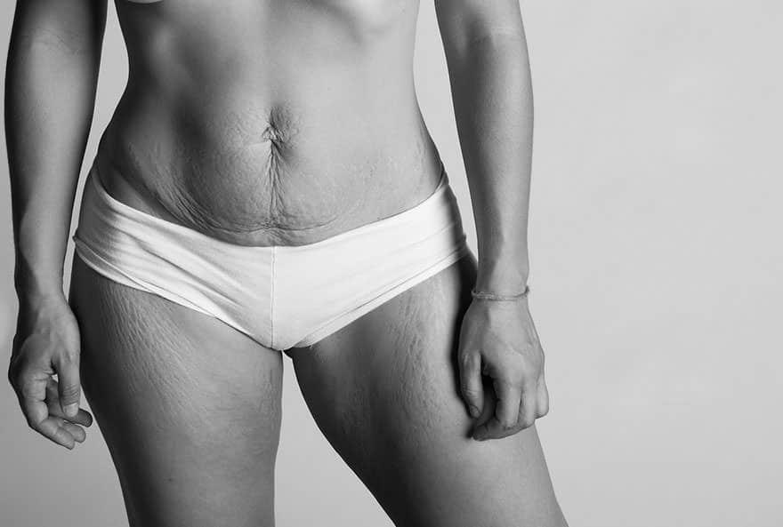 photos femmes apres grossesse 12