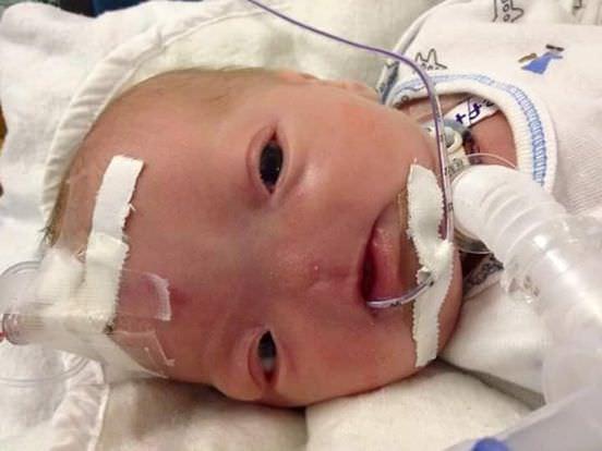 Bebe sans nez 4