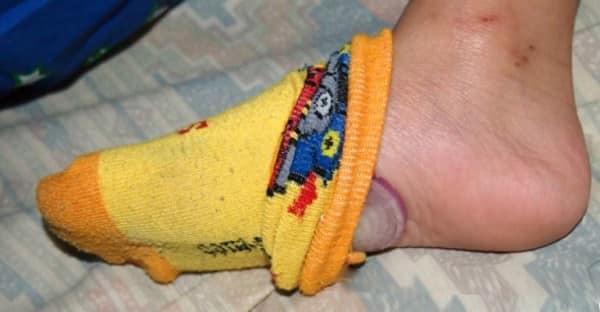 oignon dans les chaussettes