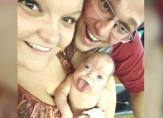 Un bébé né avec une f