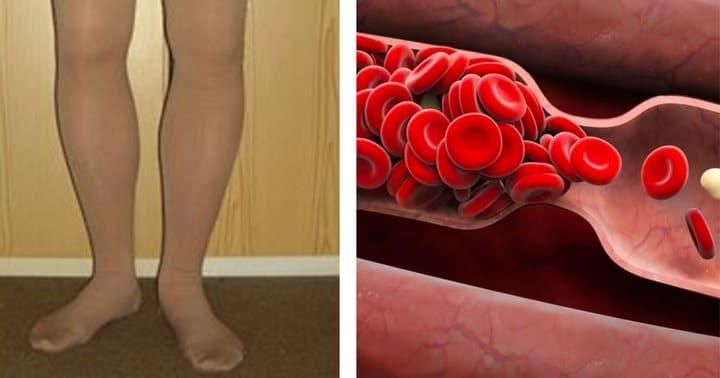 8 signes avant coureurs de la formation potentielle d un caillot de sang que vous ne devriez pas. Black Bedroom Furniture Sets. Home Design Ideas