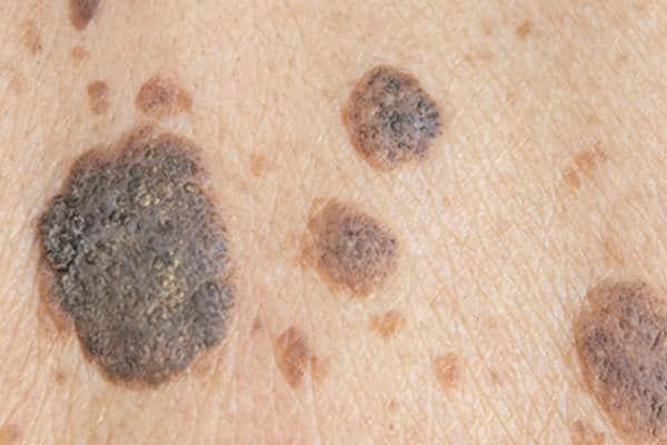 5 signes que votre melanome 02